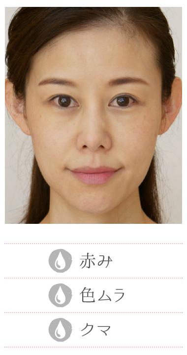 Before 赤み・色ムラ・クマ